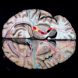 Le malattie ambientali – i danni neurocognitivi