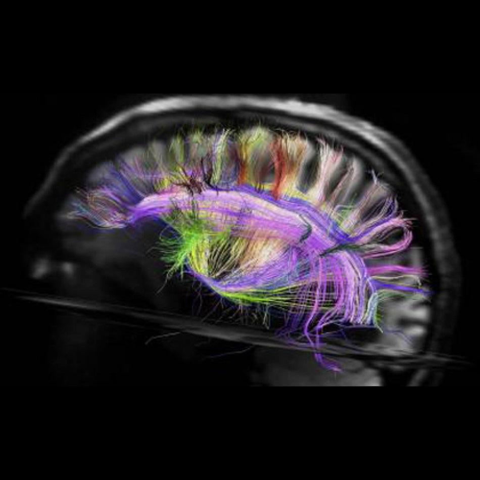 neuroimaging image